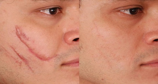 Home-Remedies-For-Scar-Removal.jpg